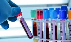 Лимфоциты: норма в крови, что это такое, где образуются?