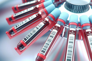 Норма общего белка в крови у женщин и мужчин, причины отклонения