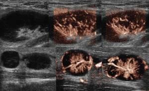 УЗИ лимфоузлов шеи, подмышек, паха – что показывает?