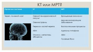 КОМПЬЮТЕРНАЯ ТОМОГРАФИЯ: [что это и отличие от МРТ] 5 глав