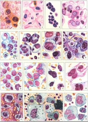 Лейкоциты в мазке у женщин: норма, причины повышения