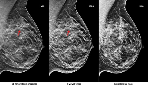 Когда делать маммографию: на какой день цикла лучше?