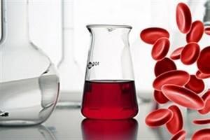Кровь и эритроциты в моче – что это значит в результатах анализа?