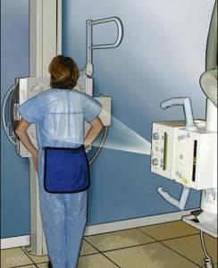 Покажет ли флюорография воспаление легких?