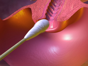 Лейкоциты в мазке у мужчин: норма, причины повышения