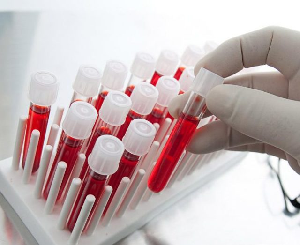 Базофилы повышены у взрослого в крови: причины, что делать?
