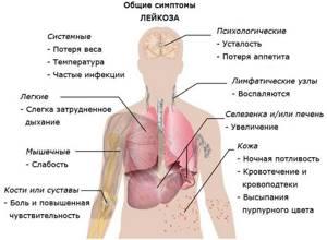 Анализ крови при лейкозе у детей и взрослых: признаки и симптомы