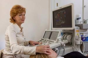 Транскраниальная допплерография сосудов головного мозга