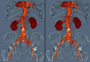 Рентген почек с контрастным веществом: подготовка, как делают?