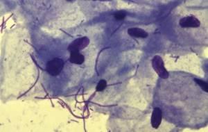 Повышены лейкоциты в мазке: что это значит, причины