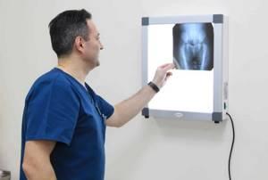 Рентген легких: как часто можно делать, что показывает? (с фото)
