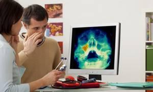 Рентген пазух носа: расшифровка, как часто можно делать?