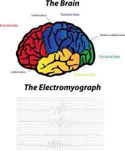 Электромиография: показания, виды