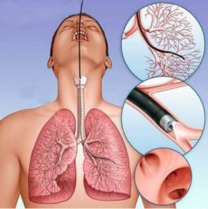 Бронхоскопия легких – что это такое и как делают?