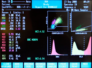 rbc в анализе крови: расшифровка, норма