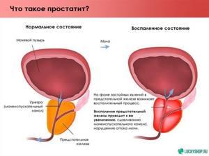 Агглютинация и агрегация в спермограмме: что это значит?